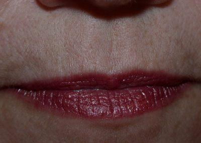 5-Wks-Post-1-Tx-LHR-Upper-Lip-DSCN2696