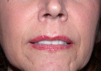 9-Days-Post-PM-Lips--DSCN2870