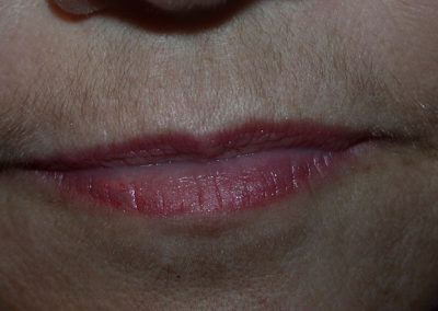 LHR-Consult-Upper-Lip-DSCN2683