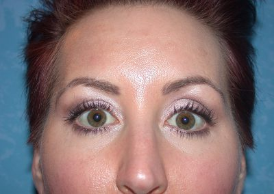 PM-Brows-6mos-after-TU-DSCN7106