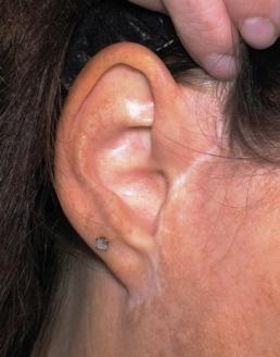 Pre Right Ear